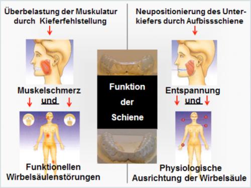 Funktion der Aufbissschiene