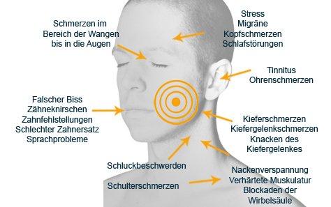 Beschwerden durch eine Craniomandibuläre Dysfunktion