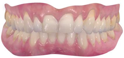Digitaler Zahnabdruck der Zähne