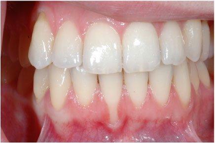 Zahnfleisch Tut Weh Wenn Man Draufdrückt