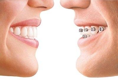Durchsichtige Schiene vs. gewöhnliche Zahnspange