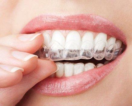 Zahnregulierung - Durchsichtige Kunststoffschiene
