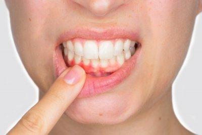 Parodontitis oder Parodontose