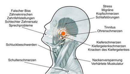 Symptome Kiefergelenksbeschwerden
